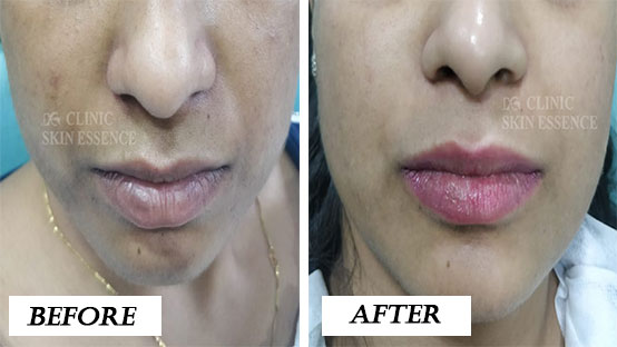 Pigmentation Treatment Before and After