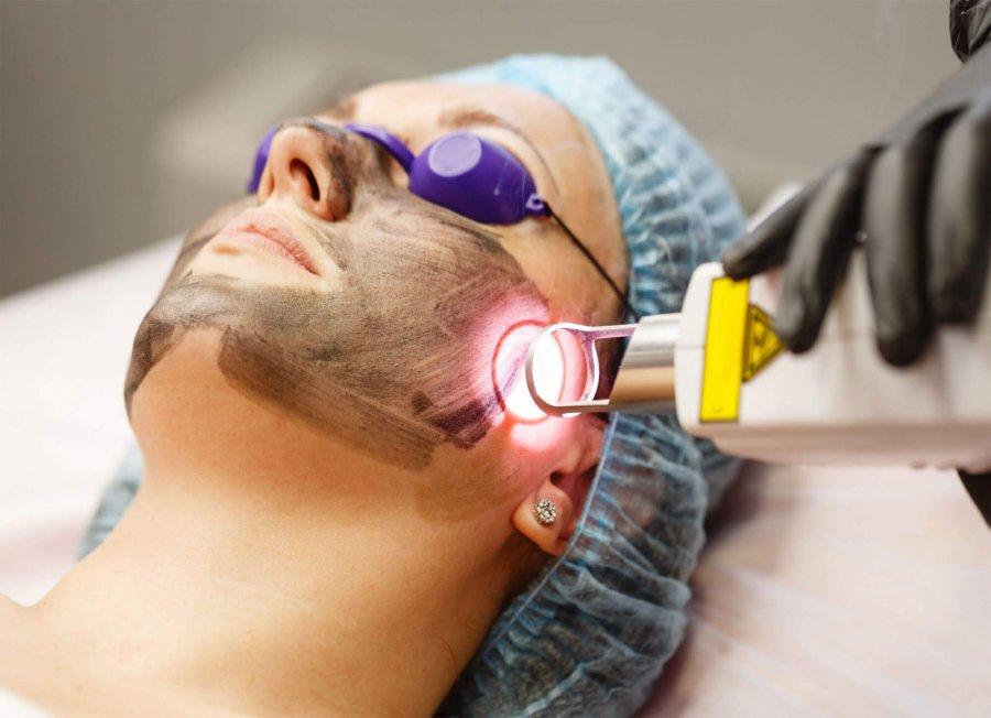 Carbon Laser Treatment